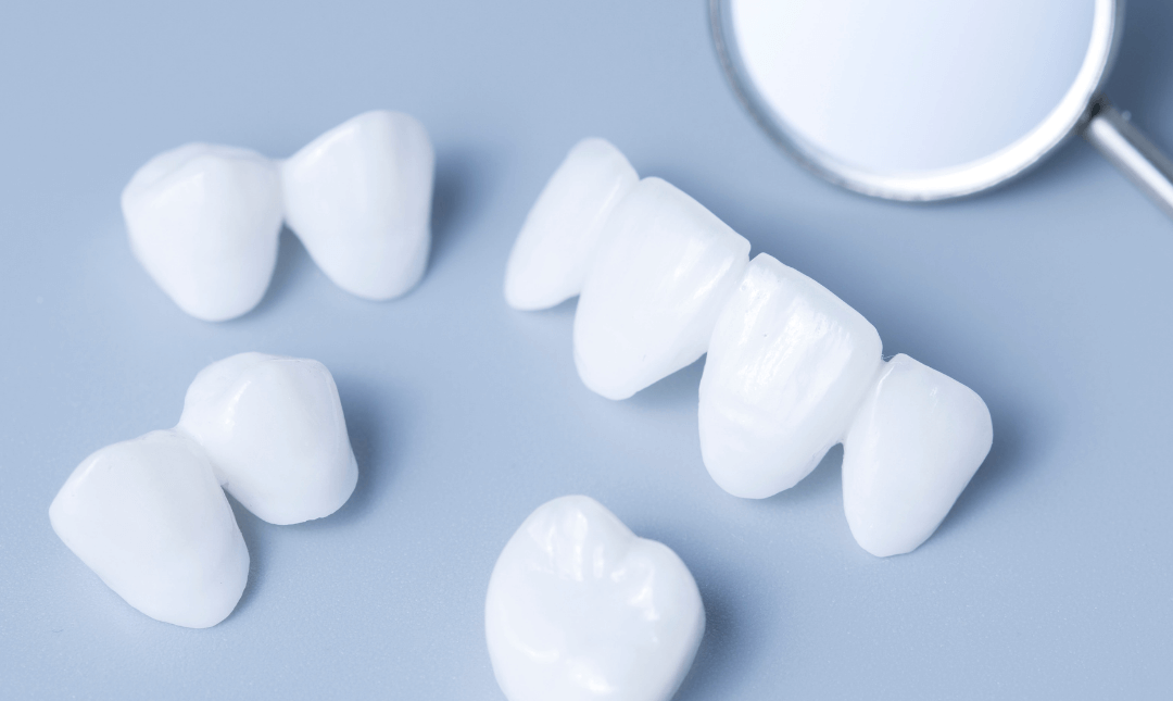 Dental Crowns: The process